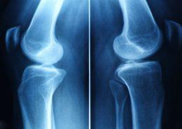 17367215 - x-ray film of knee